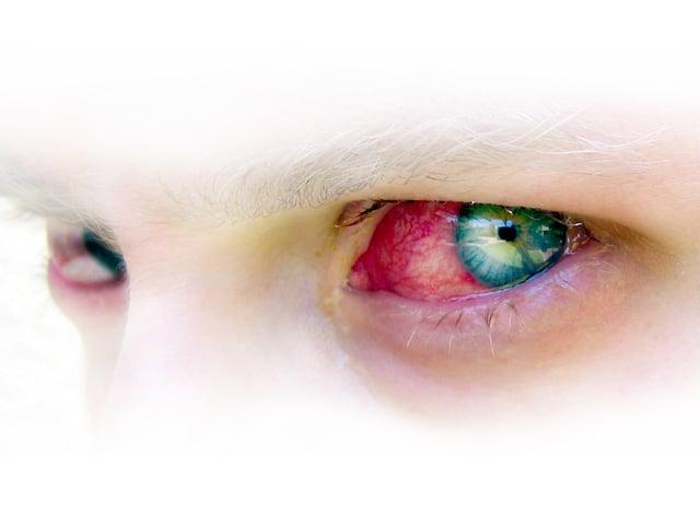 デジタル加工された青い瞳の充血した目